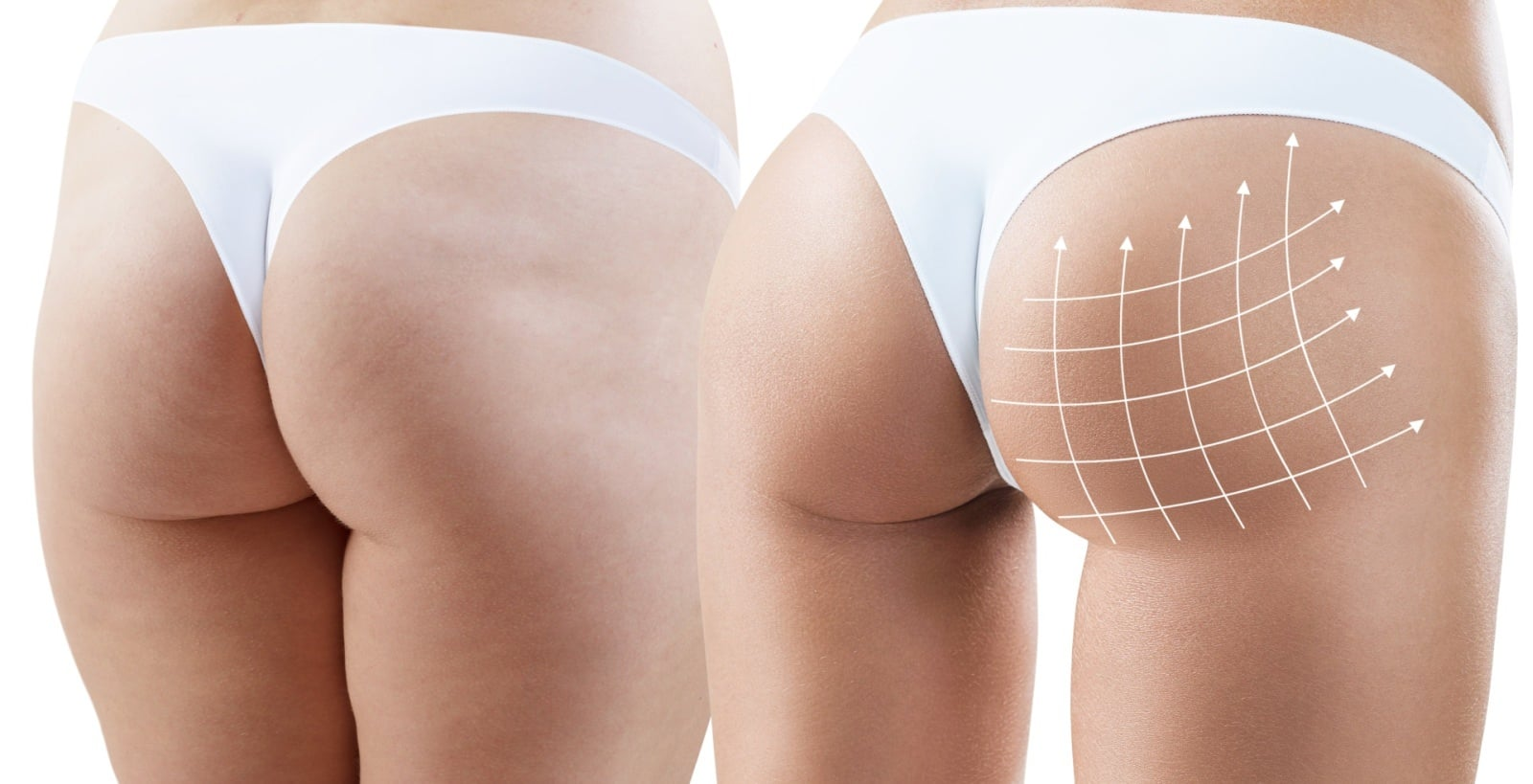 Brazilian buttlift